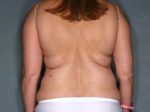 Abdomen Liposuction